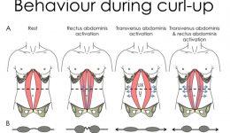 Returning to Exercise with Diastasis Recti